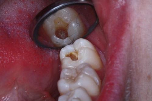 Sâu răng khôn