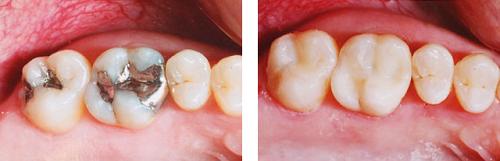 Sâu răng khôn 2