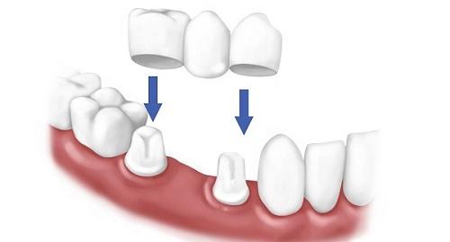 Sâu răng cửa 2