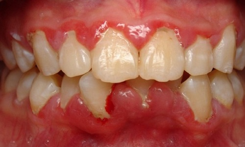 Răng khôn có mấy cái 2