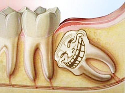 Răng khôn mọc ngầm có nên nhổ 2