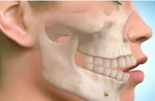 Bệnh nghiến răng có lây không