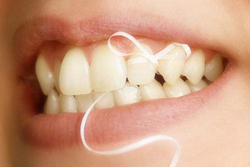 Dùng chỉ nha khoa có làm răng thưa 2