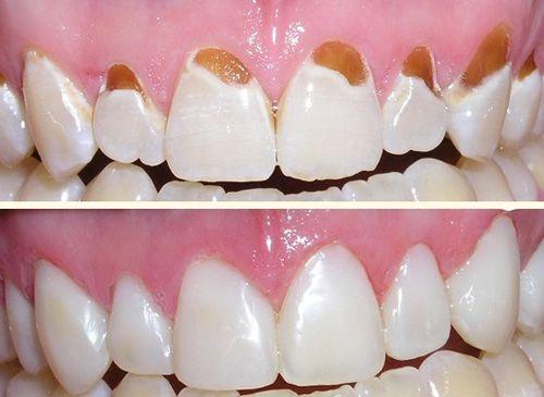 Trám răng 2