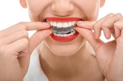 Niềng răng tháo lắp có hiệu quả không