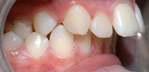 Răng hô có nên bọc sứ