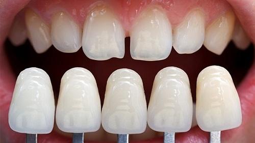 Thế nào là răng thưa 2