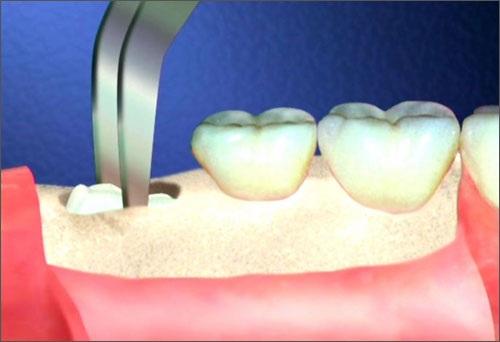 Răng khôn có mấy chân 2