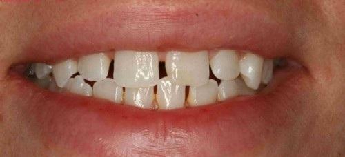 Răng thưa có xấu không