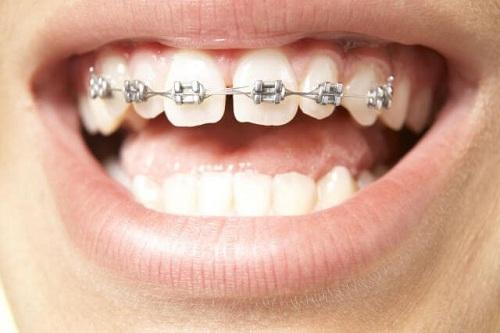 Răng thưa có xấu không 2