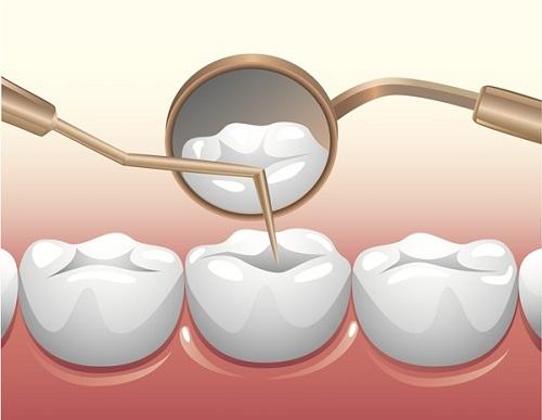 Trám răng sâu ở đâu tốt 2