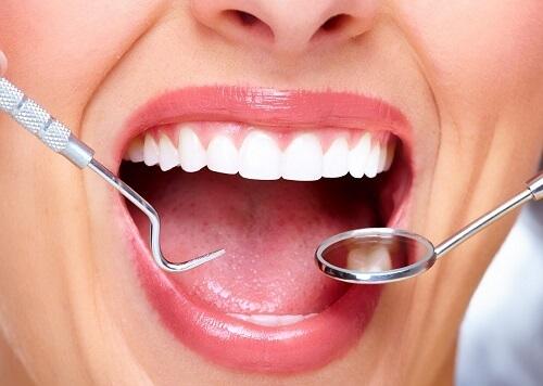 Lấy cao răng có an toàn không