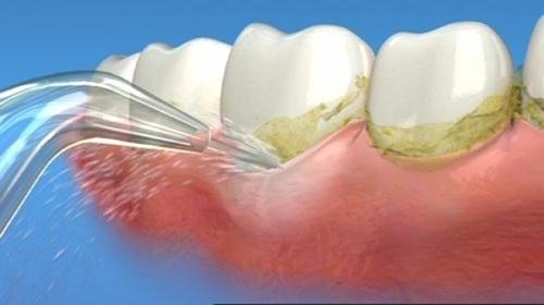 Lấy cao răng có an toàn không 2