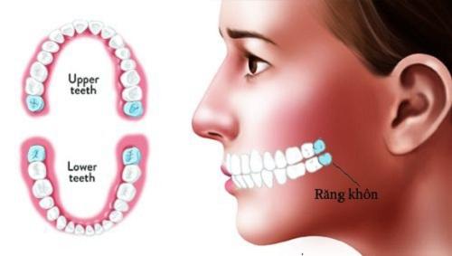 Răng khôn là răng số mấy 2