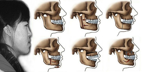Răng móm 2