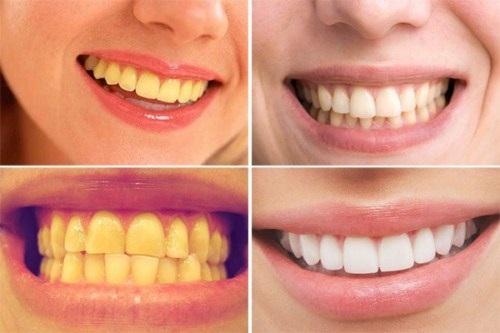 Làm máng tẩy trắng răng tại nhà
