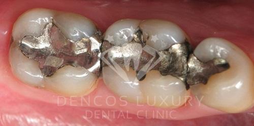 Kiêng gì sau khi hàn răng 2