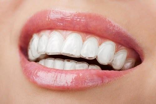 Niềng răng 2