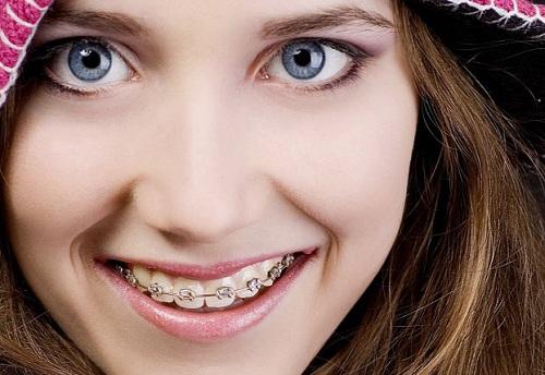 Làm sao để răng hết vẩu 2