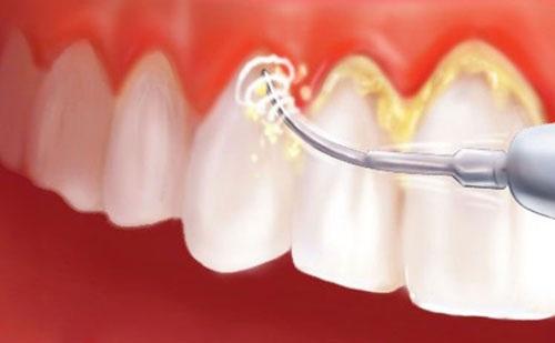 Lấy cao răng có đau không 2