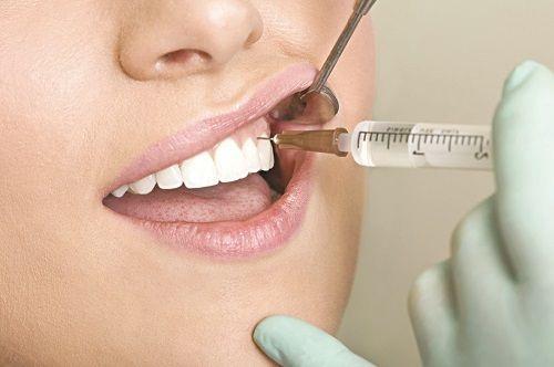 Nhổ răng sâu có đau không 2