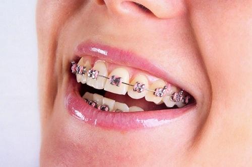 Niềng răng có phải nhổ răng không 2