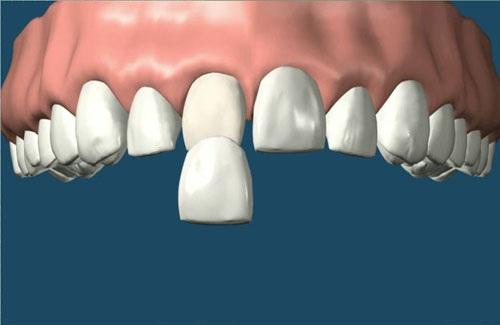 Răng vẩu phải làm sao 2