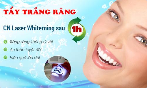 Tẩy trắng răng bằng Laser có hại không 2