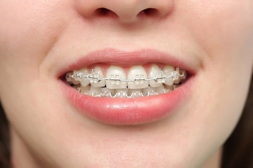 Cách chữa răng vẩu