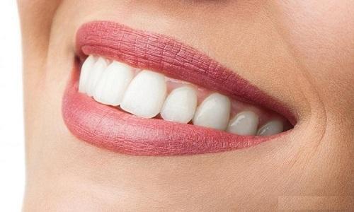 Cách chữa răng vẩu 2