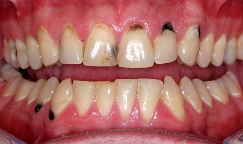 Hàn trám răng thẩm mỹ