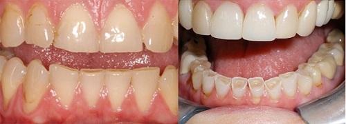 Ngủ nghiến răng là bệnh gì 2