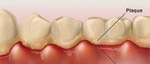 Răng lung lay 2