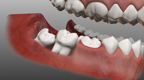 Răng khôn là gì 2