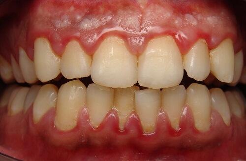 Có nên lấy cao răng