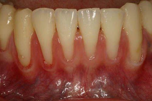 Có nên lấy cao răng 2