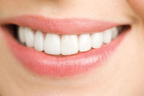 Lấy cao răng như thế nào 2