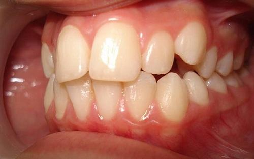 Niềng răng trong bao lâu