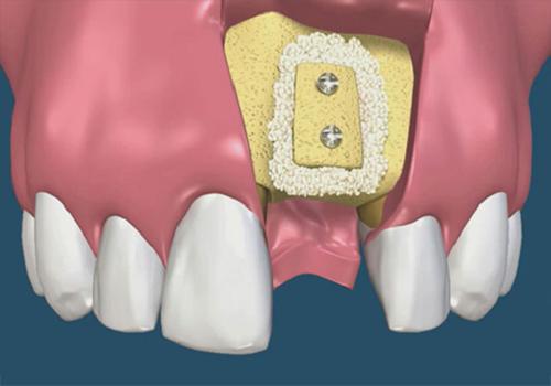 Vì sao nên ghép xương răng 2