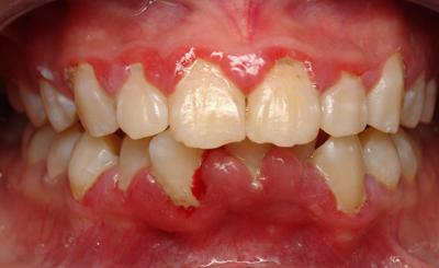 Bệnh viêm quanh răng là gì?