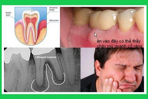 Tác hại của viêm quanh răng