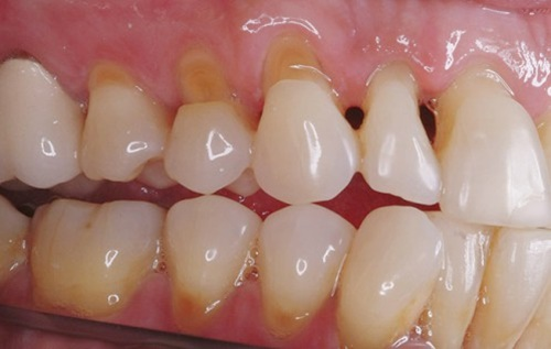 Triệu chứng khi bịnhức răng mòn men