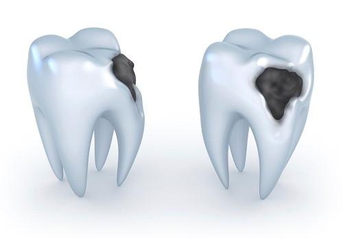Giai đoạn 2 của viêm tủy răng