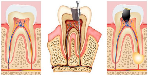 Giai đoạn 3 của viêm tủy răng