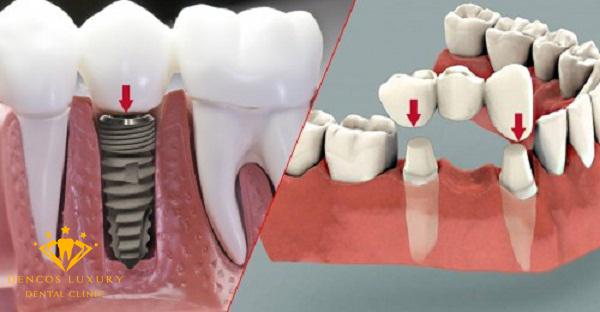 nên làm implant hay cầu răng sứ