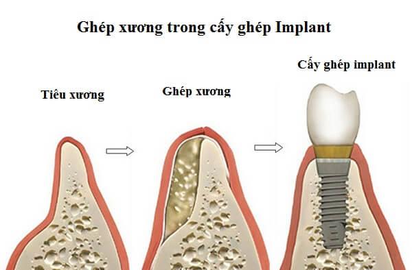 cấy ghép xương răng