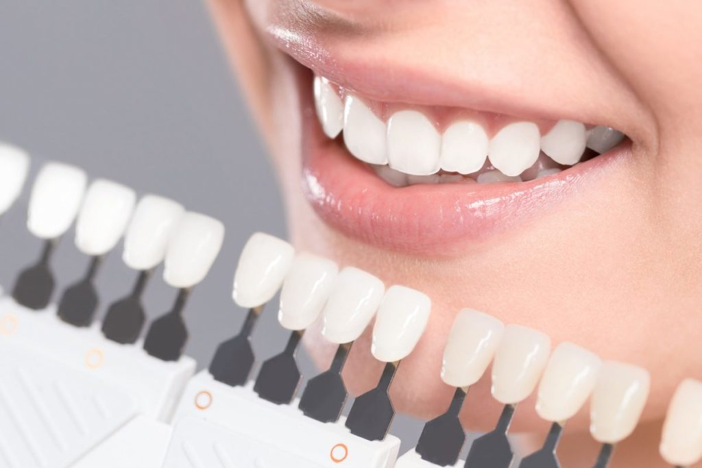 Tẩy trắng răng bằng đèn trong bao lâu?
