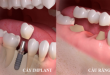 Người mất răng nên làm cầu răng hay Implant thì tốt hơn?
