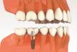 Quy trình cấy ghép răng implant được thực hiện như thế nào?