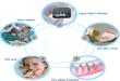 Quy trình cắm răng Implant diễn ra như thế nào?